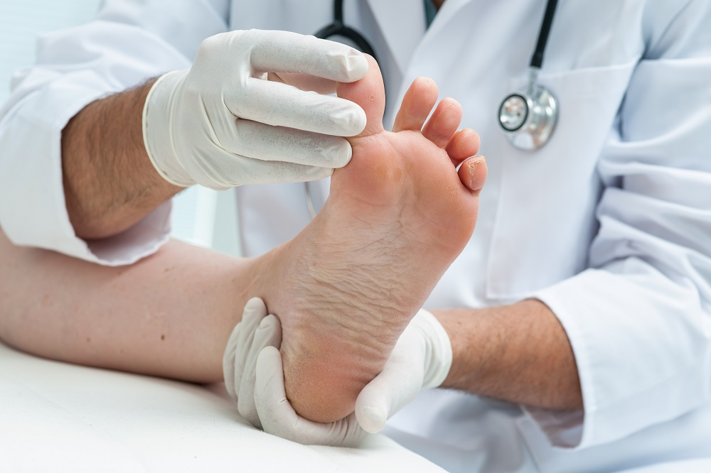 Q&A: Treating Osteoarthritis with Toe Implant Surgery - The
